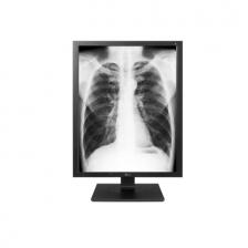 "Zdravotnícky 21,3 ""farebný diagnostický monitor IPS s vysokým jasom"